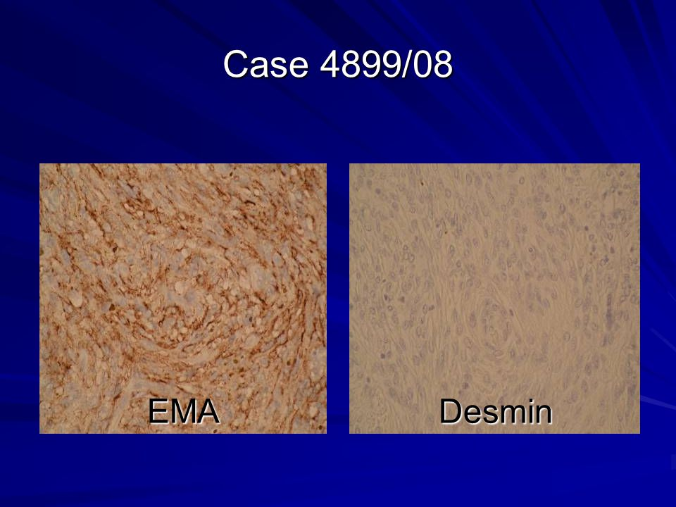 Case 4899/08 EMA Desmin