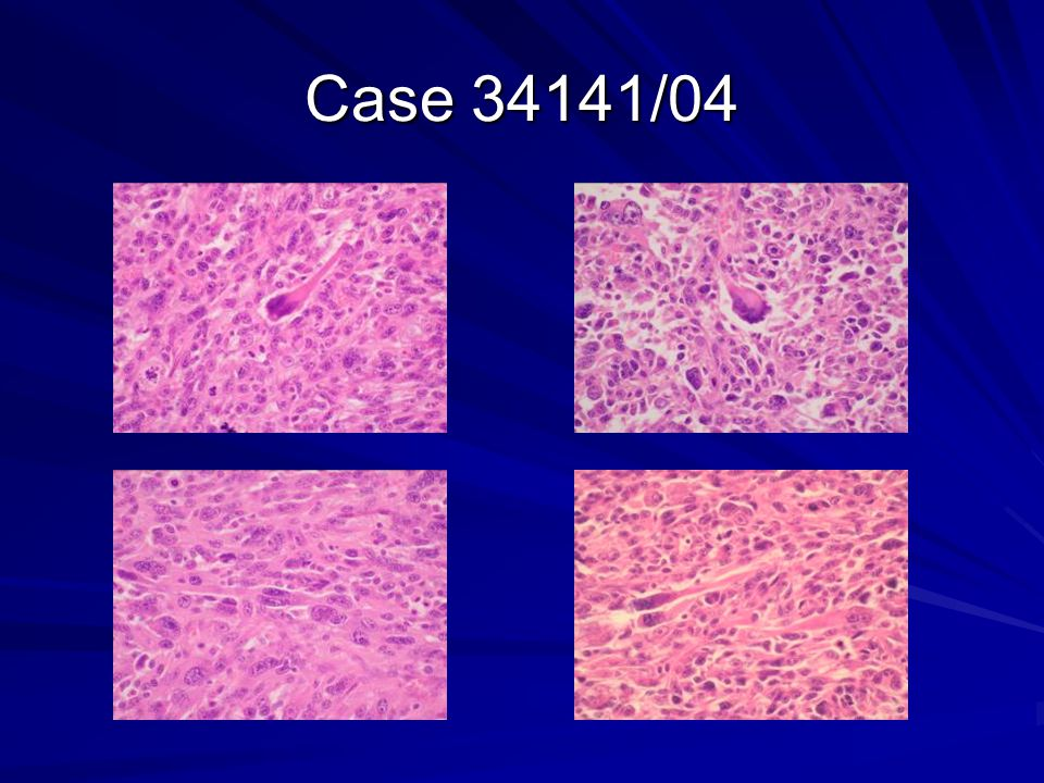 Case 34141/04