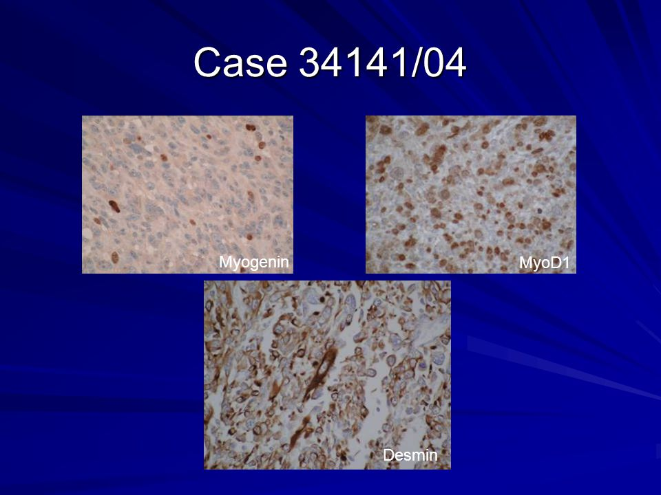 Case 34141/04 Myogenin MyoD1 Desmin