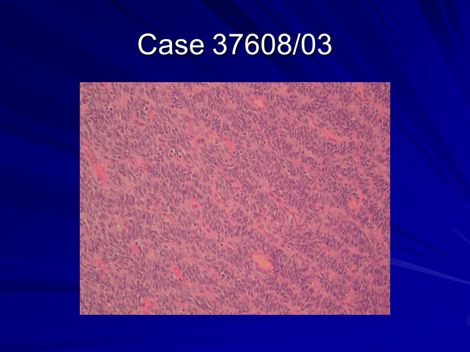 Case 37608/03