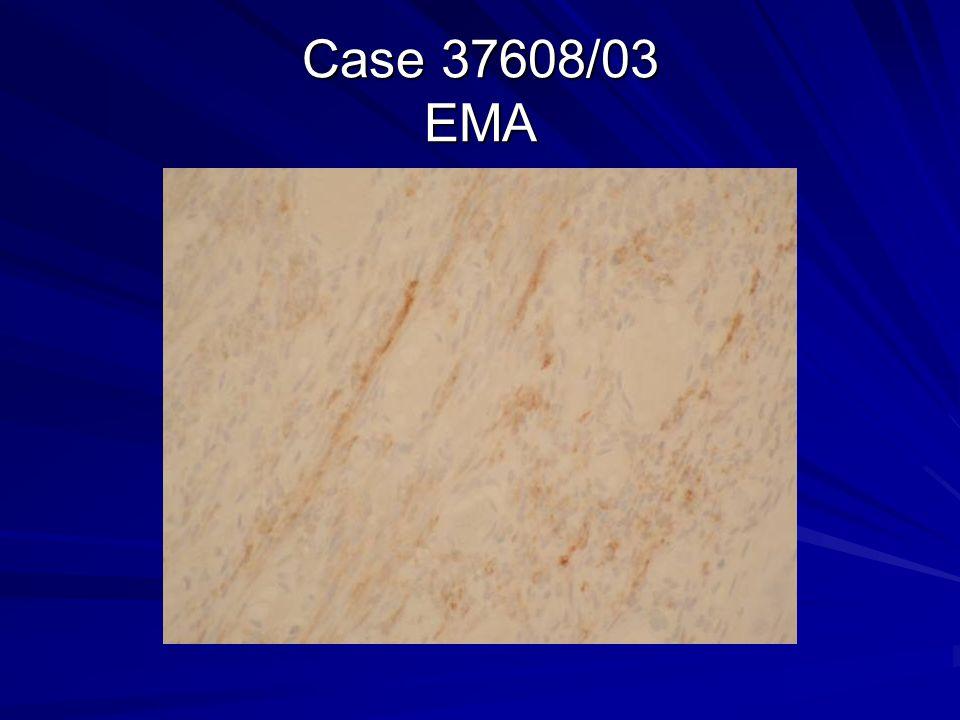 Case 37608/03 EMA