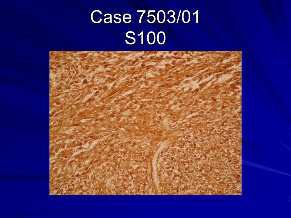 Case 7503/01 S100
