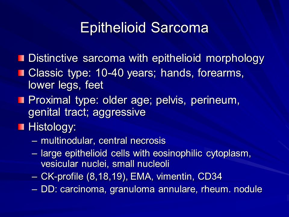 Epithelioid Sarcoma Distinctive sarcoma with epithelioid morphology