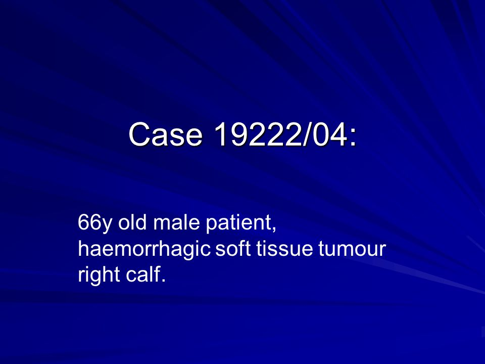 66y old male patient, haemorrhagic soft tissue tumour right calf.