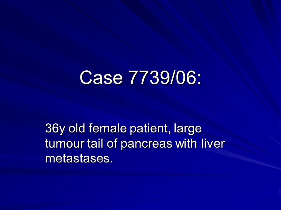 Case 7739/06: 36y old female patient, large tumour tail of pancreas with liver metastases.
