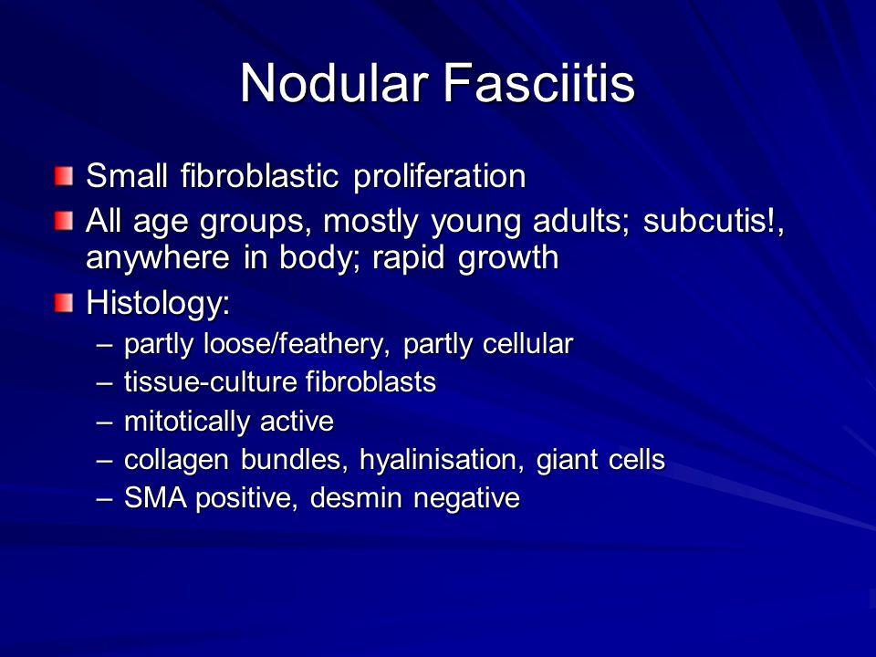 Nodular Fasciitis Small fibroblastic proliferation