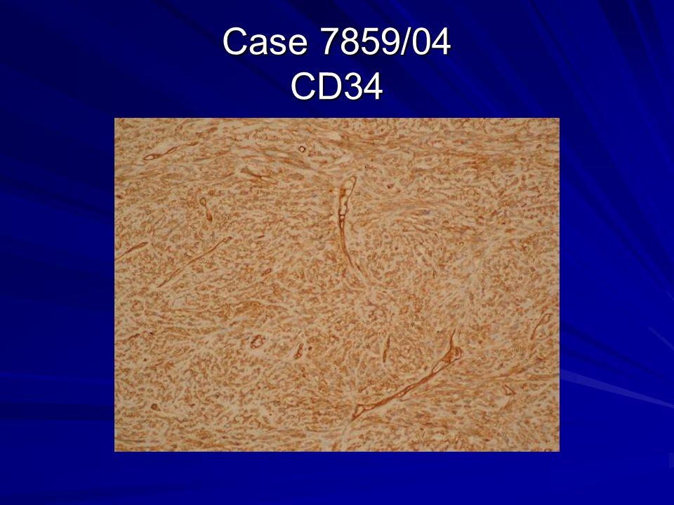 Case 7859/04 CD34