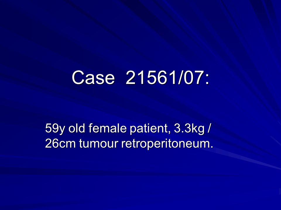 59y old female patient, 3.3kg / 26cm tumour retroperitoneum.