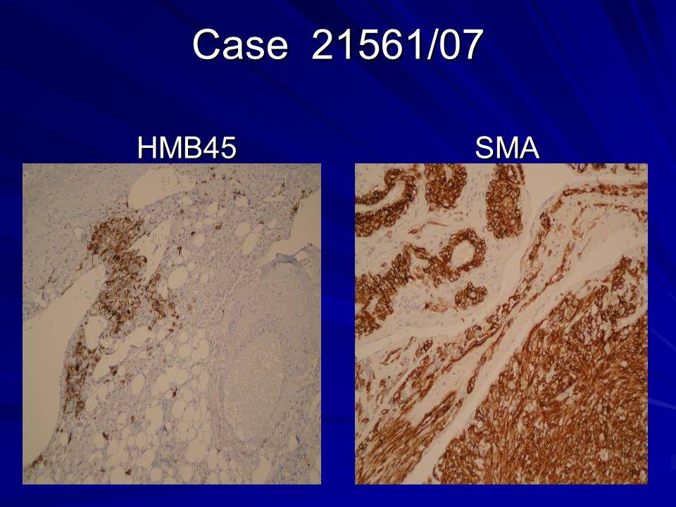Case 21561/07 HMB45 SMA