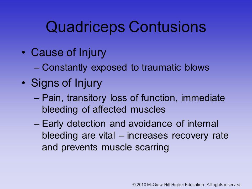 Quadriceps Contusions