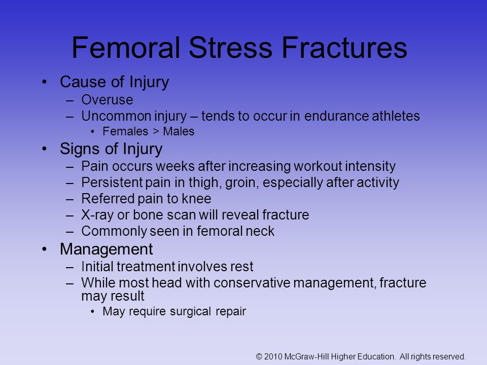 Femoral Stress Fractures