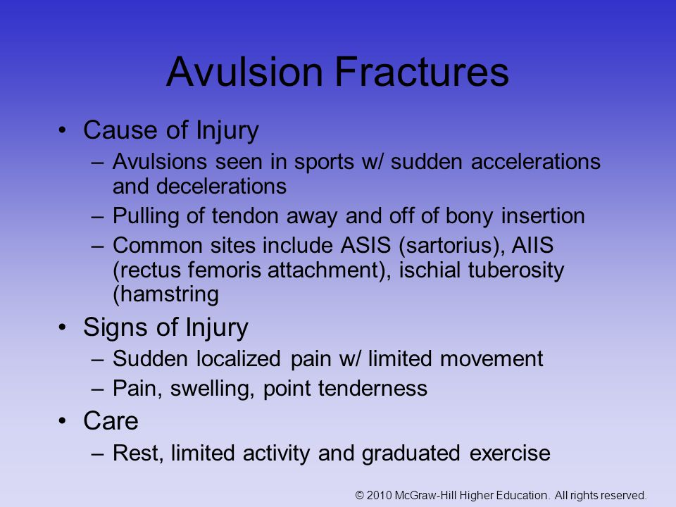 Avulsion Fractures Cause of Injury Signs of Injury Care