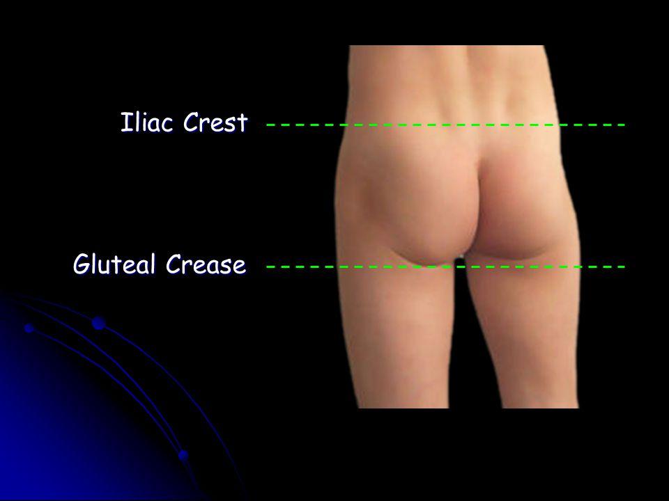 Iliac Crest Gluteal Crease Gluteal Cleft