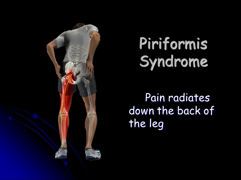 Piriformis Syndrome Pain radiates down the back of the leg
