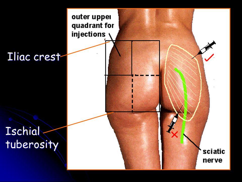 Iliac crest Ischial tuberosity