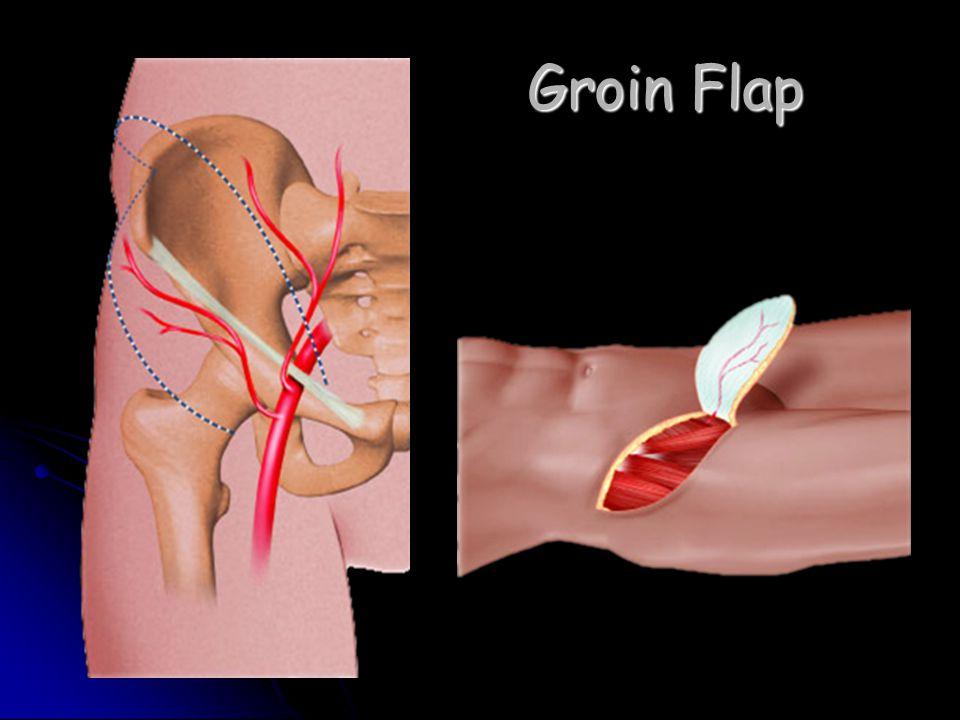 Groin Flap