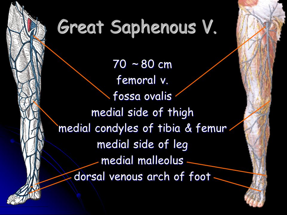 Great Saphenous V. 70 ~80 cm femoral v. fossa ovalis