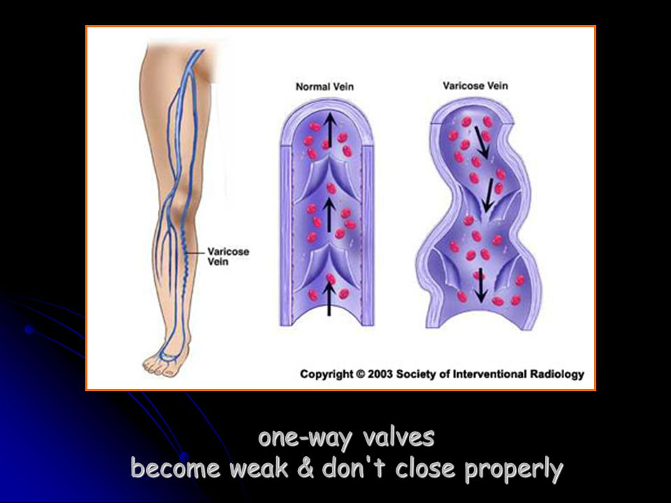 one-way valves become weak & don t close properly