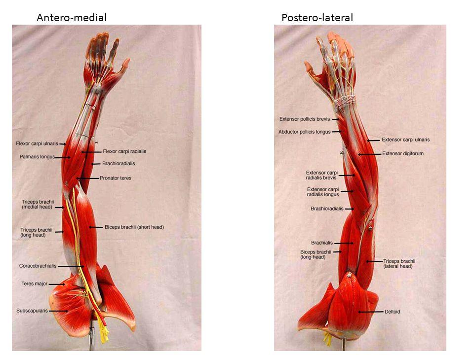 Antero-medial Postero-lateral
