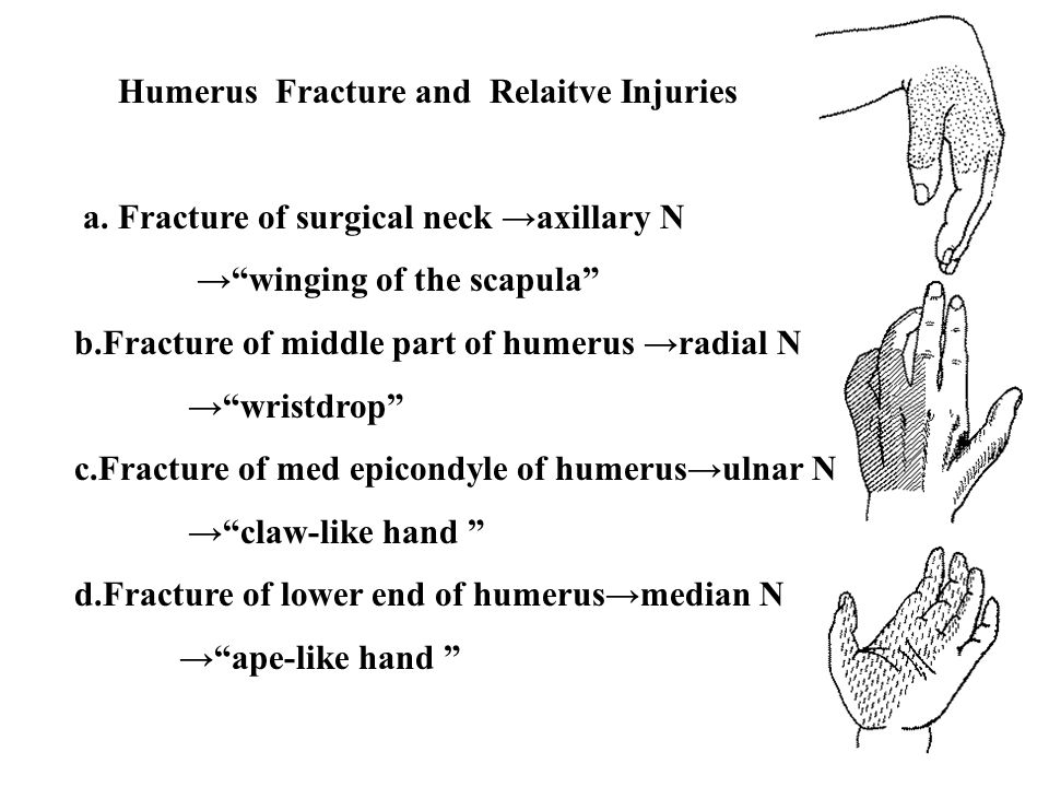 Humerus Fracture and Relaitve Injuries
