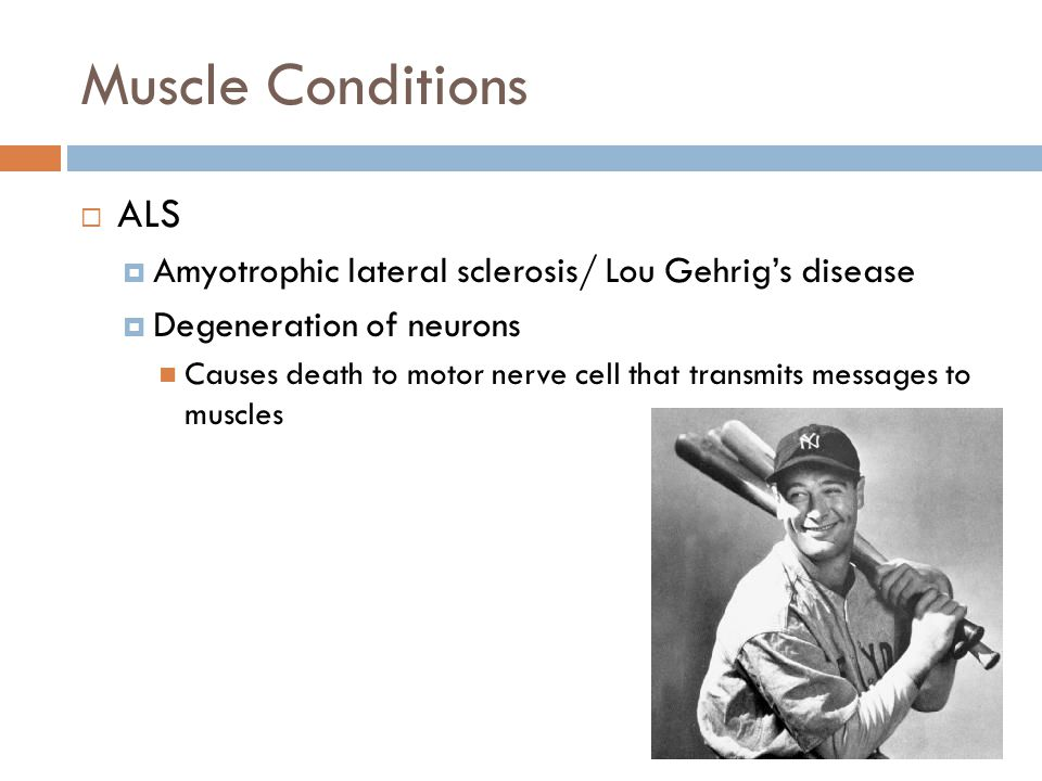 Muscle Conditions ALS. Amyotrophic lateral sclerosis/ Lou Gehrig's disease. Degeneration of neurons.