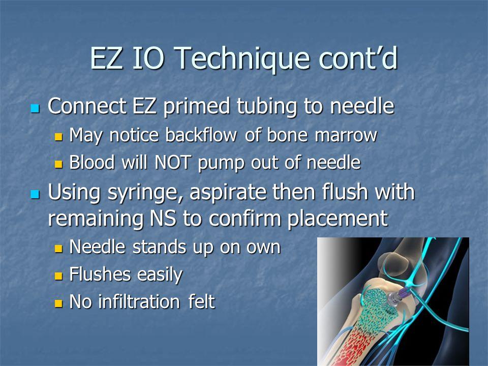 EZ IO Technique cont'd Connect EZ primed tubing to needle