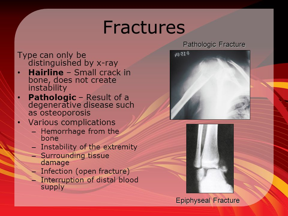 Fractures Type can only be distinguished by x-ray