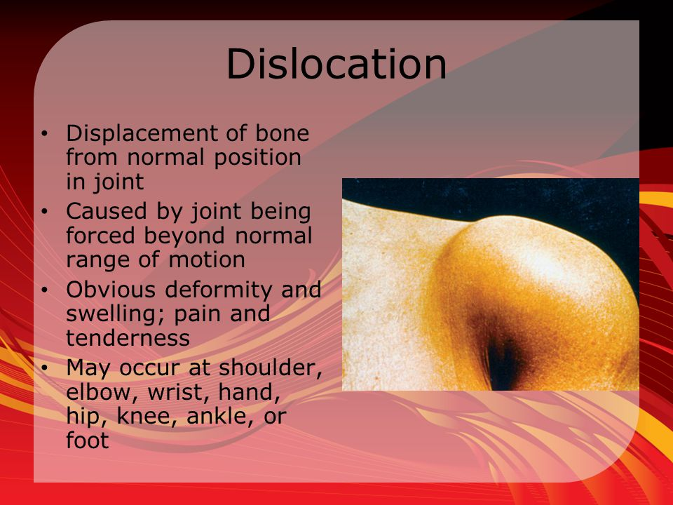 Dislocation Displacement of bone from normal position in joint