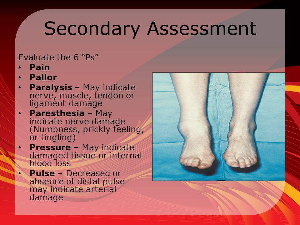 Secondary Assessment Evaluate the 6 Ps Pain Pallor