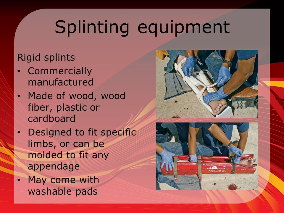 Splinting equipment Rigid splints Commercially manufactured