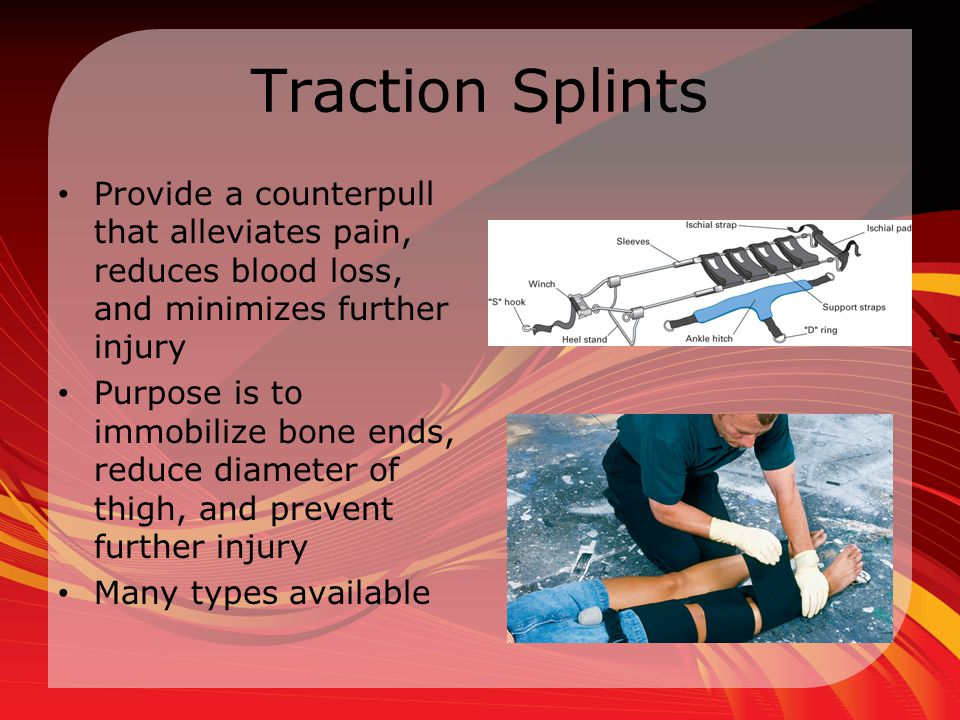 Traction Splints Provide a counterpull that alleviates pain, reduces blood loss, and minimizes further injury.