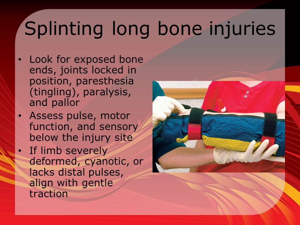 Splinting long bone injuries