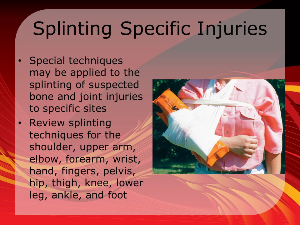 Splinting Specific Injuries