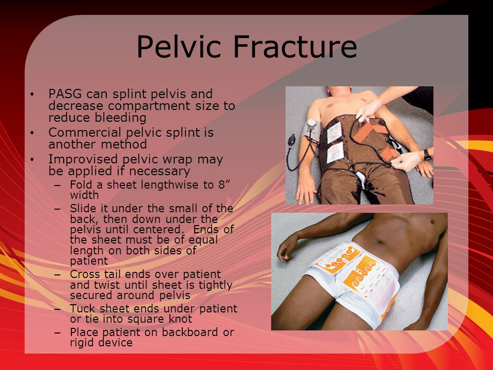 Pelvic Fracture PASG can splint pelvis and decrease compartment size to reduce bleeding. Commercial pelvic splint is another method.