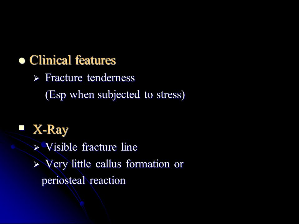 Clinical features X-Ray Fracture tenderness