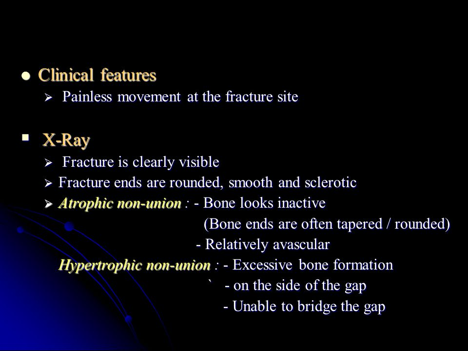 Clinical features X-Ray Painless movement at the fracture site