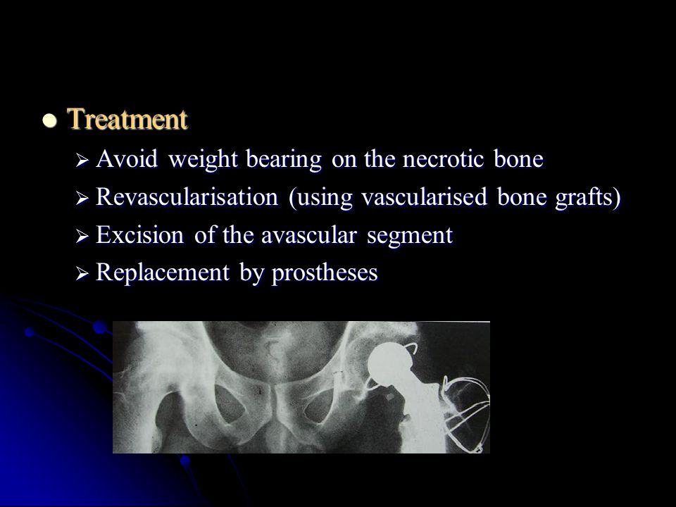 Treatment Avoid weight bearing on the necrotic bone