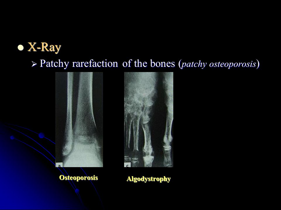 X-Ray Patchy rarefaction of the bones (patchy osteoporosis)