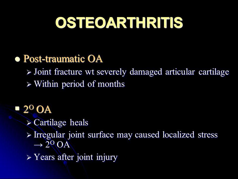 OSTEOARTHRITIS Post-traumatic OA 2O OA