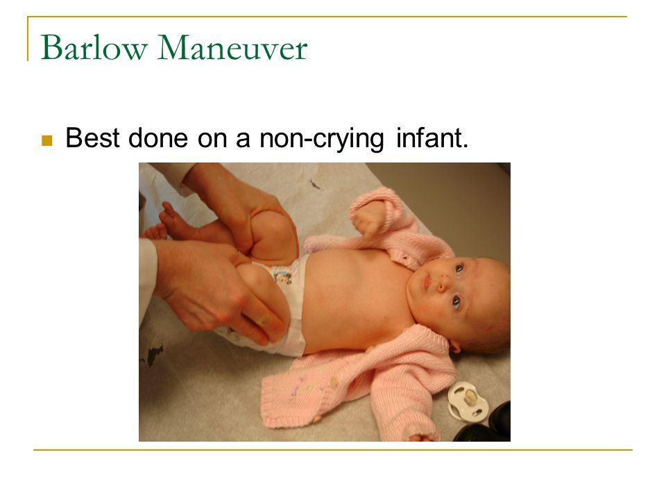 Barlow Maneuver Best done on a non-crying infant.