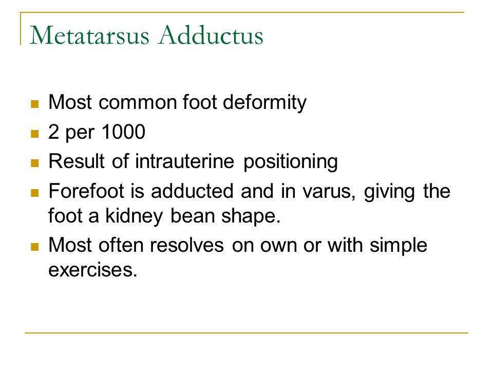 Metatarsus Adductus Most common foot deformity 2 per 1000
