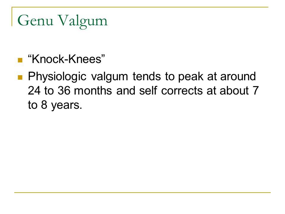 Genu Valgum Knock-Knees