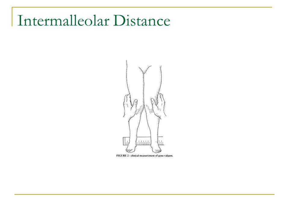 Intermalleolar Distance