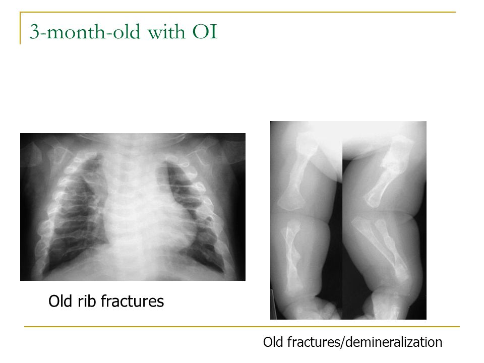 3-month-old with OI Old rib fractures Old fractures/demineralization