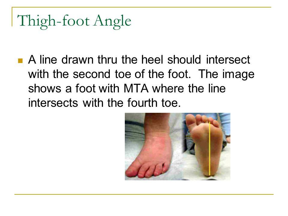 Thigh-foot Angle