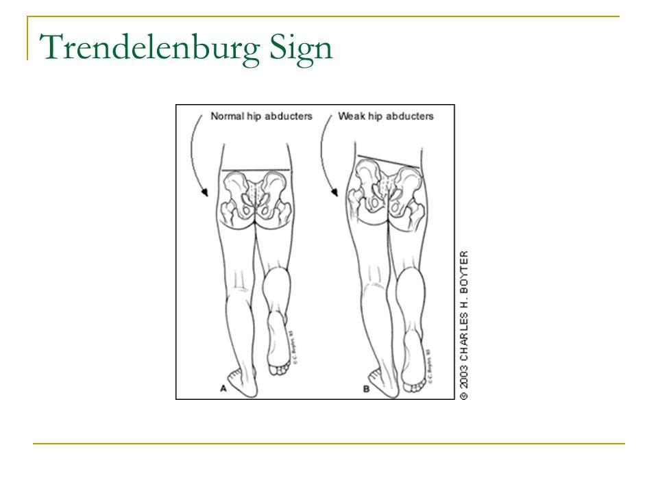Trendelenburg Sign