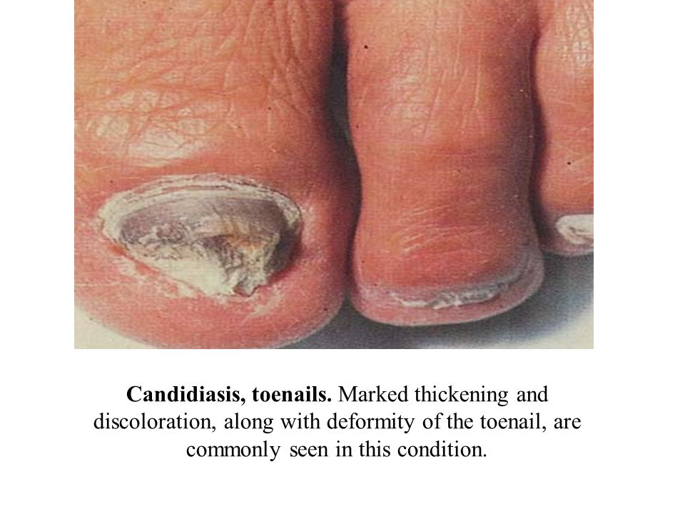 Candidiasis, toenails. Marked thickening and discoloration, along with deformity of the toenail, are commonly seen in this condition.