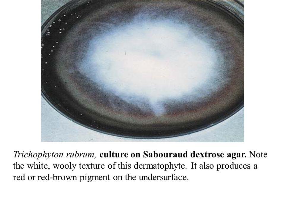 Trichophyton rubrum, culture on Sabouraud dextrose agar