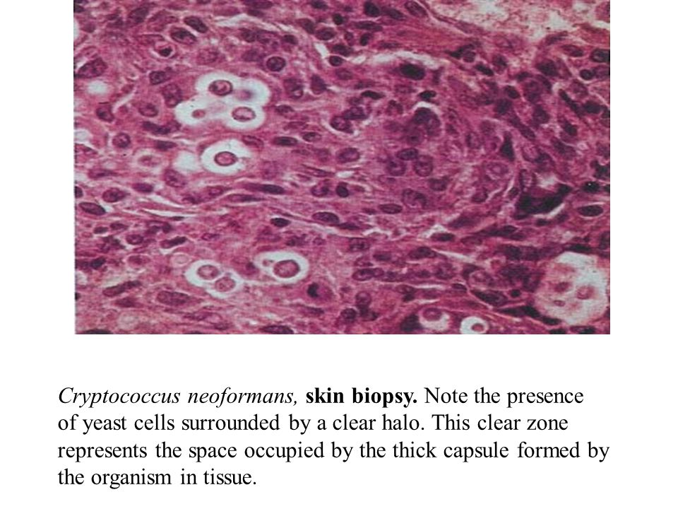 Cryptococcus neoformans, skin biopsy
