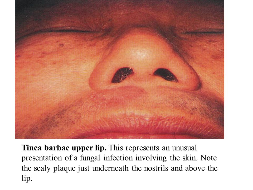 Tinea barbae upper lip. This represents an unusual presentation of a fungal infection involving the skin. Note the scaly plaque just underneath the nostrils and above the lip.